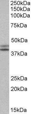 IDH1 Antibody (PA5-19414)