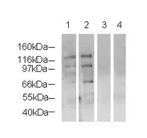 NSD3 Antibody (PA5-19427) in Western Blot