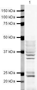 hnRNP A2B1 Antibody (PA5-19530) in Western Blot