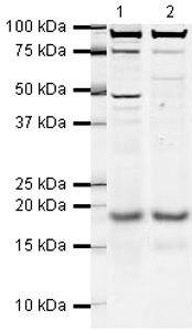 STMN1 Antibody (PA5-19531) in Western Blot
