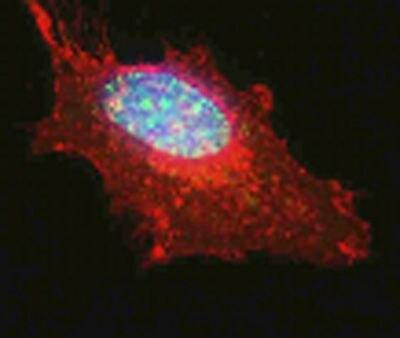 MNAR Antibody (PA5-19605)