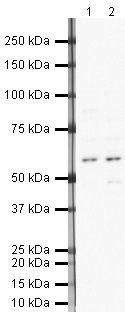 Neuroserpin Antibody (PA5-19610) in Western Blot