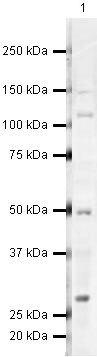 JMJD8 Antibody (PA5-19647) in Western Blot