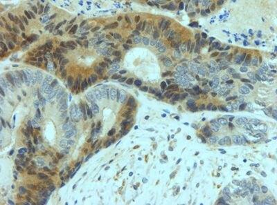 YAP1 Antibody (PA5-19677) in Immunohistochemistry