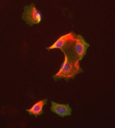 FABP4 Antibody (PA5-19811)