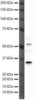 TREX2 Antibody (PA5-19844)