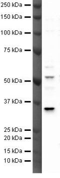 TREX2 Antibody (PA5-19844) in Western Blot