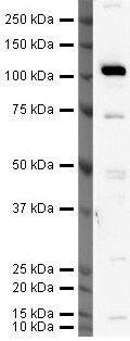 hCV-2 Antibody (PA5-19847)