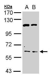 Acetylcholinesterase Antibody (PA5-21272) in Western Blot