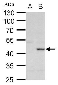 XRCC3 Antibody (PA5-21280) in Western Blot
