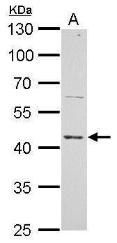 ERCC8 Antibody (PA5-21281) in Western Blot