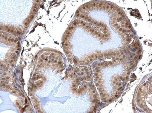 DDB1 Antibody (PA5-21282) in Immunohistochemistry (Paraffin)
