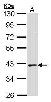 DMC1 Antibody (PA5-21283)