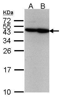 ERCC8 Antibody (PA5-21284) in Western Blot