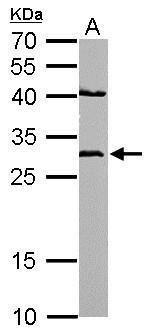 NQO1 Antibody (PA5-21290) in Western Blot