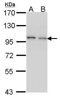 EPS8 Antibody (PA5-21295) in Western Blot