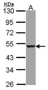 HADHB Antibody (PA5-21301)