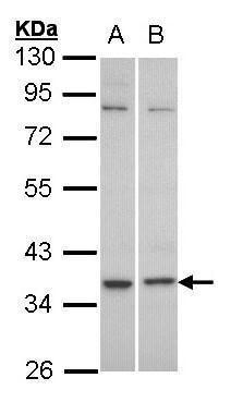 GPR77 Antibody (PA5-21307) in Western Blot