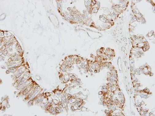 OR51E1 Antibody (PA5-21308) in Immunohistochemistry (Paraffin)