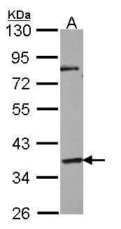 GPR45 Antibody (PA5-21310) in Western Blot