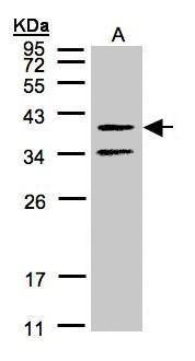 GALR2 Antibody (PA5-21311) in Western Blot