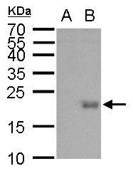 UBE2B Antibody (PA5-21316) in Western Blot
