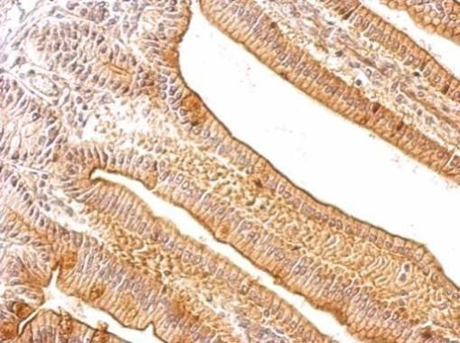 Tartrate Resistant Acid Phosphatase Antibody (PA5-21317) in Immunohistochemistry (Paraffin)