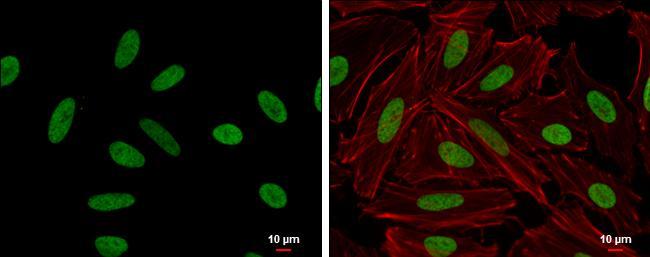 HMGA2 Antibody (PA5-21320) in Immunofluorescence