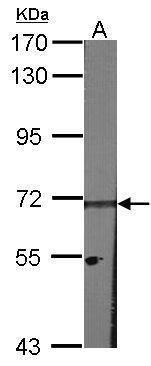 HPa2 Antibody (PA5-21326) in Western Blot