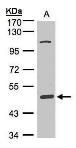 SCARA3 Antibody (PA5-21327) in Western Blot