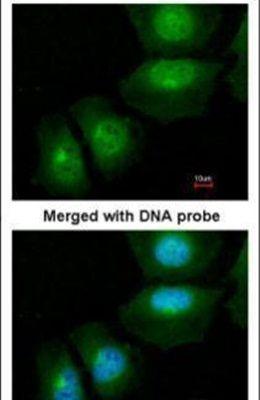 S100A11 Antibody (PA5-21330) in Immunofluorescence
