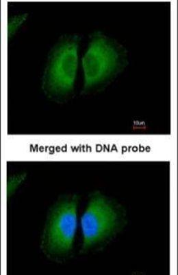Kininogen Light Chain Antibody (PA5-21333)