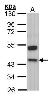 Kininogen Light Chain Antibody (PA5-21333) in Western Blot