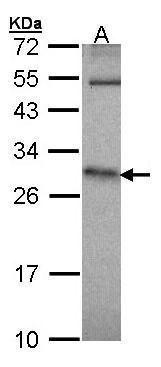 HPRT1 Antibody (PA5-21342) in Western Blot