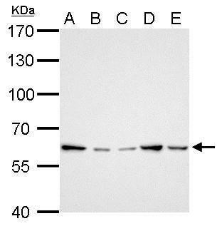 GGT1 Antibody (PA5-21344) in Western Blot
