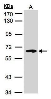 GBA Antibody (PA5-21347) in Western Blot
