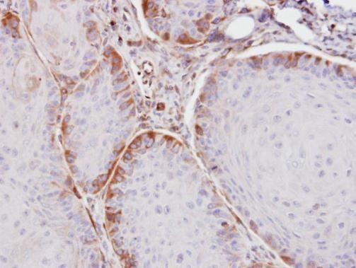 ASS1 Antibody (PA5-21351)