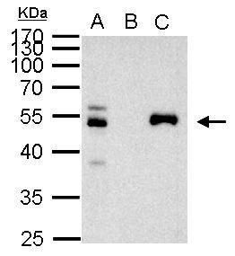 PAX8 Antibody (PA5-21368) in Immunoprecipitation