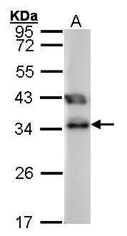 TTC1 Antibody (PA5-21373) in Western Blot