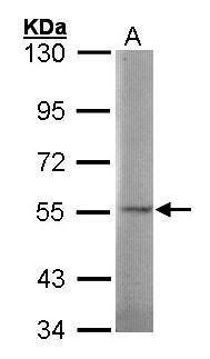 SGSH Antibody (PA5-21375) in Western Blot