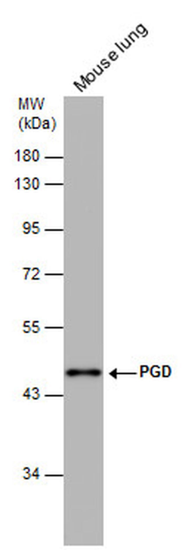PGD Antibody (PA5-21376) in Western Blot