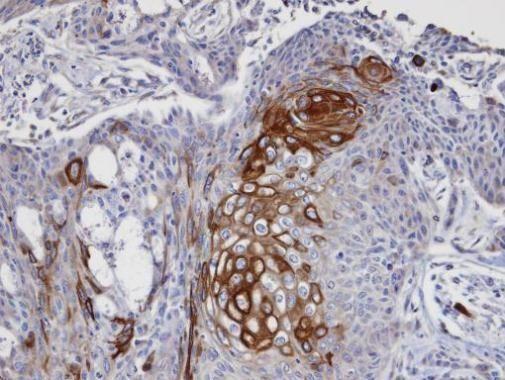DAP5 Antibody (PA5-21377) in Immunohistochemistry (Paraffin)