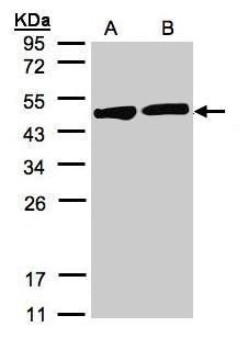 Creatine Kinase BB Antibody (PA5-21382) in Western Blot