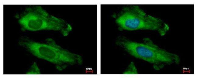 RPS10 Antibody (PA5-21390)
