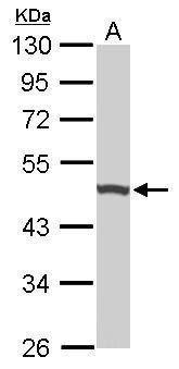UQCRC1 Antibody (PA5-21394) in Western Blot
