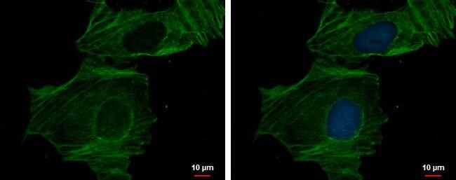 alpha-Cardiac Actin Antibody (PA5-21396)