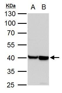alpha-Cardiac Actin Antibody (PA5-21396) in Western Blot