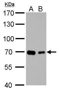 GAD67 Antibody (PA5-21397) in Western Blot