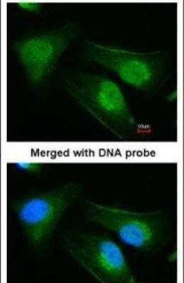 DNAJB6 Antibody (PA5-21401)