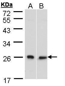 DNAJB6 Antibody (PA5-21401) in Western Blot